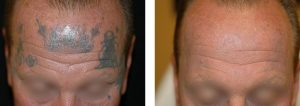 Spectra Tattoo Removal