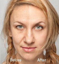 Hollywood Laser Peel Spectra